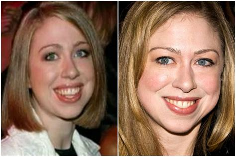 did hillary clinton have plastic surgery 2015 chelsea clinton plastic surgery bing images