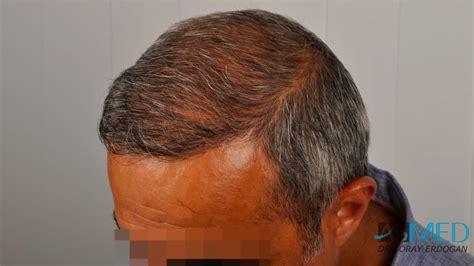 hair transplant innovations asmed hair transplant results gallery norwood 5 dr