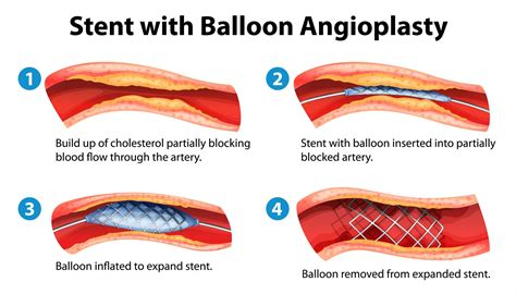 Coronary Angioplasty With Or Without Stent Implantation | balloon angioplasty and stent placement remed health
