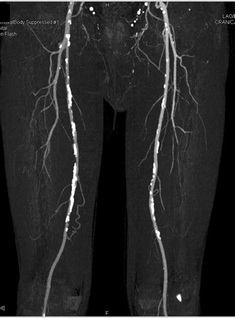 CTA Runoff with Left Common Iliac Artery Occluded