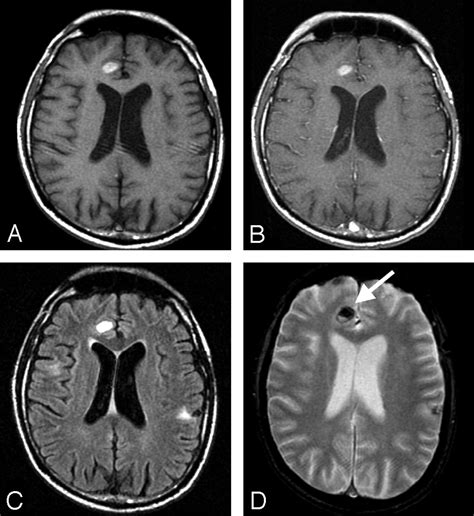 melanoma brain metastasis mri improved detection of metastatic melanoma by t2 weighted