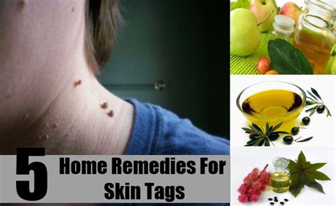 5 best home remedies for skin tags treatments