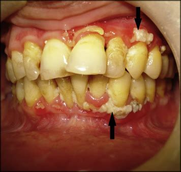 trench mouth acute necrotizing ulcerative gingivitis