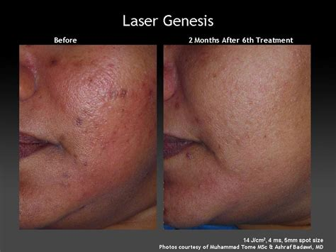 cutera laser genesis treatment laser genesis