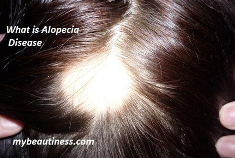 alopecia areata causes 25 best ideas about alopecia causes on pinterest hair