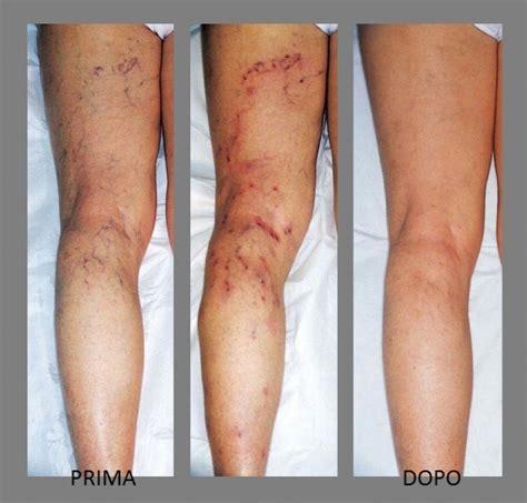rottura vasi capillari dott massimo di martino chirurgia vascolare