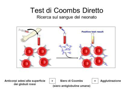 test coombs indiretto test di coombs perch 233 232 importante in gravidanza roba