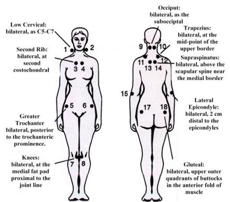 18 tender points of fibromyalgia diagram what is fibromyalgia symptoms diagnosis treatment