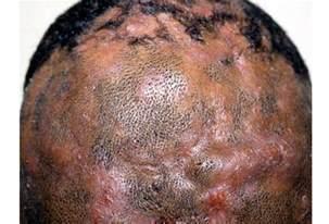Fungal Diseases In Plants List - hair diseases