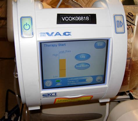 wound vac in home health care professional home care