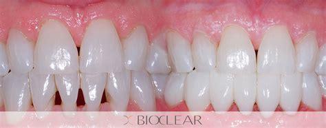 bioclear treatment eltham dental family dental