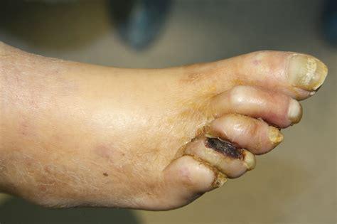 abscess on leg leg abscess