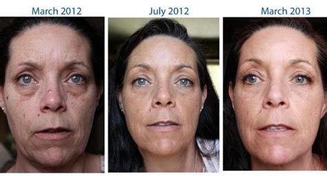 proactiv dark spot corrector before and after proactiv dark spot corrector before and after