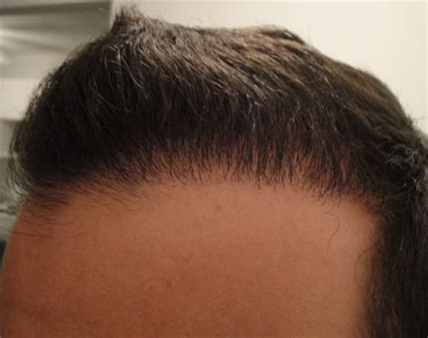 hair transplant month by month 4 months