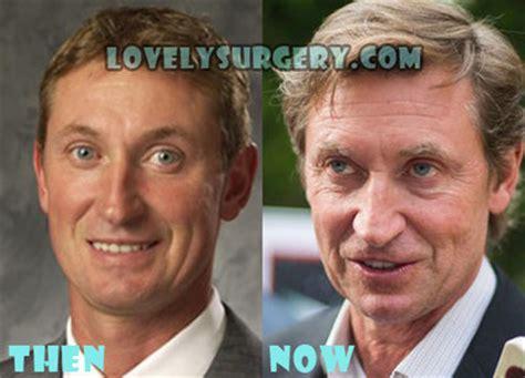 louis licari plastic surgery before heidi klum plastic surgery before and after pic