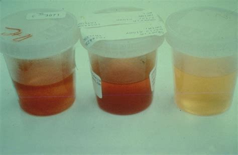black urine dark colored urine