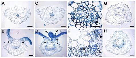 pattern formation leaf the blade on petiole 1 gene controls leaf pattern