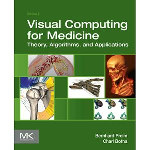 new book quot parallel programming with microsoft visual c visual computing for medicine 2nd edition wow ebook