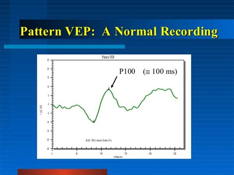flash pattern vep clinical visual electrophysiology