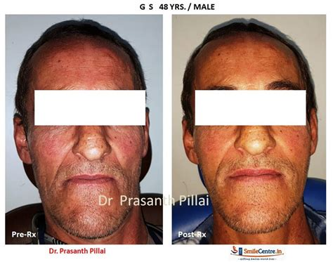 Next Facelift For Your Teeth 2 by Dental Lift 2 Smilecentre