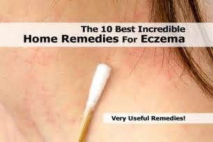 eczema home treatment the 10 best home remedies for eczema