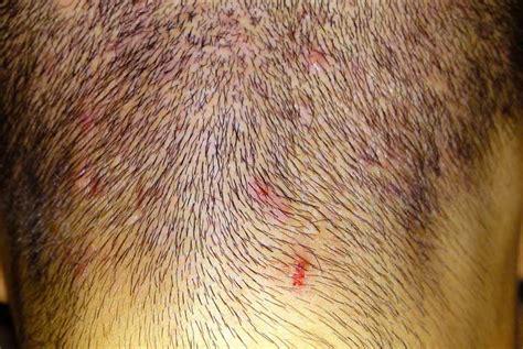 crosticine in testa brufoli sul cuoio capelluto cause e rimedi