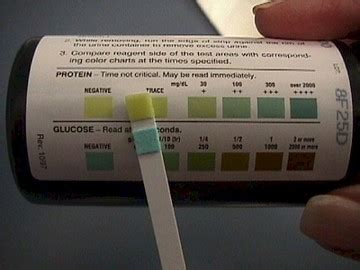 24h urine protein 24 hour urine test during pregnancy how to properly