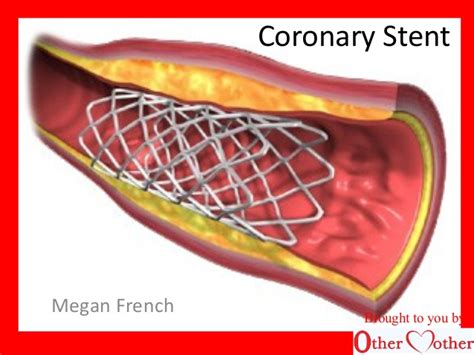 Cardiac Stent Images coronary stent