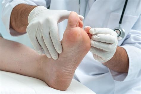 athletes foot shoe treatment how to treat and prevent athlete s foot the ultimate guide