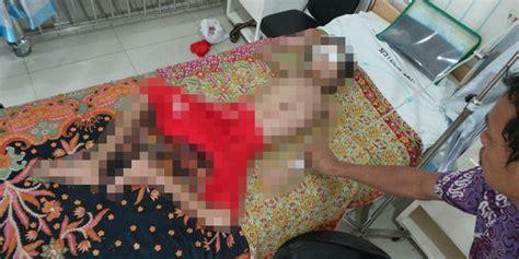Daster Anak Remaja Sd anak sd menderita tumor di wajah keluarga kesulitan biayai operasi merdeka
