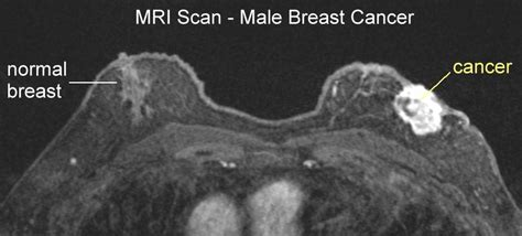 Z Techs Breast Cancer Scanner by Breast Cancer Mri Images