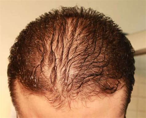 Diffuse Hair Loss Male Pattern Baldness | what is telogen effluvium diffuse hair loss and how to