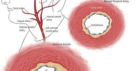 temporal arteritis common symptoms  headache jaw pain  visual problems urgent
