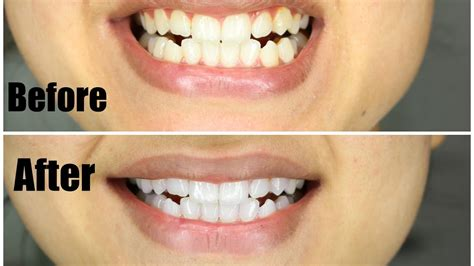 whiten teeth    diy natural charcoal teeth