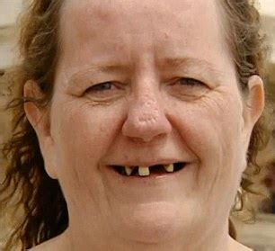 toothless grandmother, 48, who called herself 'fat and