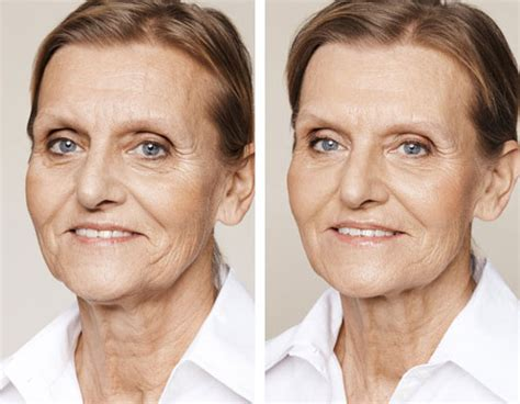 women with sagging jaws pics neck rejuvenation london cosmetic beauty treatments