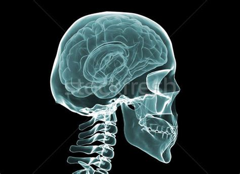 brain x skull stock photos stock images and vectors stockfresh