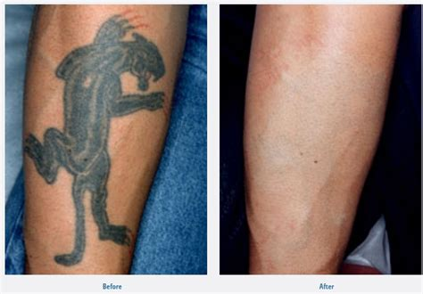 non laser tattoo removal before and after removal connecticut now with the revolutionary