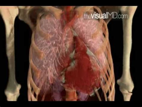 enlarged image enlarged heart and consquences thevisualmd com youtube