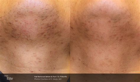 ingrown and exfoliate legs when to exfoliate after laser hair removal om hair