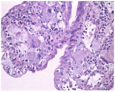 galera de imgenes y fotos bonitas fotografas de rosas color metstasis duodenal de un cncer de pulmn serie estmago