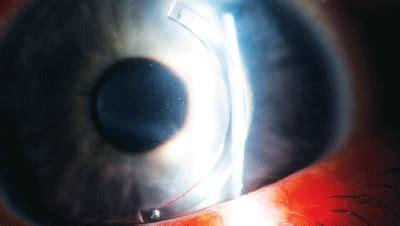 a look at corneal crosslinking