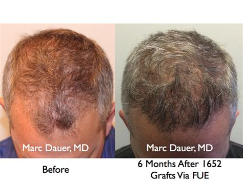los angeles hair transplant newhairstylesformen2014 com los angeles hair restoration and transplants los angeles