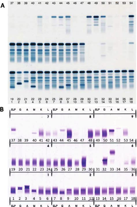 u protein electrophoresis protein electrophoresis and combined light chain