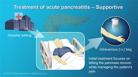 pancreatitis treatment at home management and treatment of acute pancreatitis