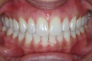 what color are your gums supposed to be gum lift gum reshaping boca raton cosmetic dentistry