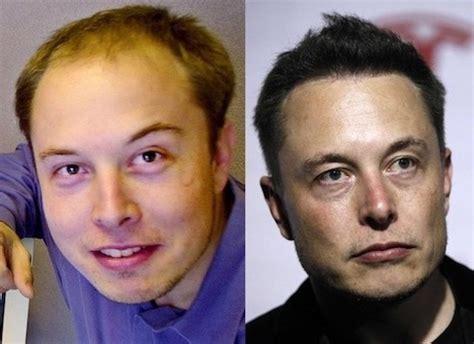 elon musk now and then elon musk vs mark zuckerberg 15 comparisons quertime