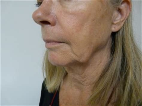 best haircut for joules and sagging neck los angeles jowls