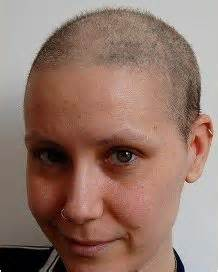 hairstyle for when hair grows back after chemo post chemo hair regrowth pictures search results