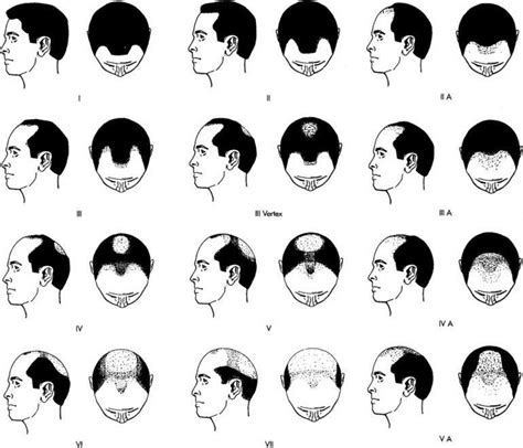 hairline pattern is a mature hairline a sign of male pattern baldness the